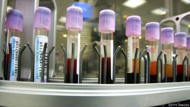 150505034245_blood_test_624x351_gettyimages